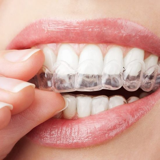 Want A Straight Smile? How To Find The Right Orthodontist