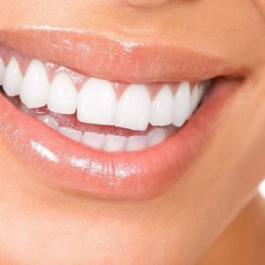 Rotting Teeth: 3 Reasons To Consider Dental Implants